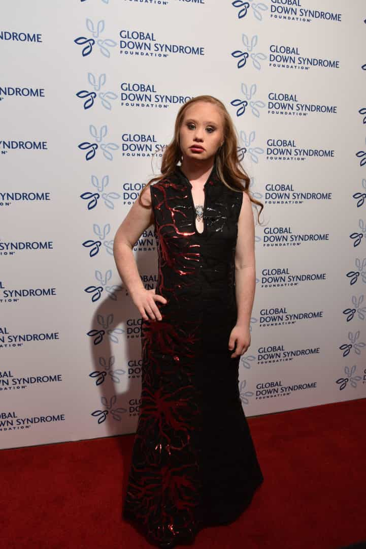 Conheça a primeira top model do mundo com síndrome de Down