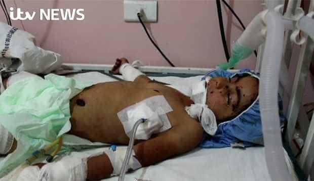 Criança de 4 anos morre na Síria após confundir bomba com brinquedo