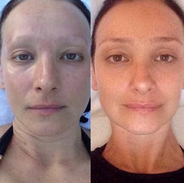 Sabrina Parlatore celebra fim da quimioterapia com fotos antes e depois