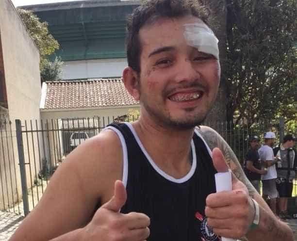 Corintiano espancado e dado como morto reaparece sorrindo na web